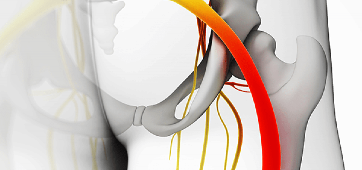 Using CBD for Sciatica Nerve Pain