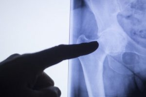 hip pain treatment Reservoir